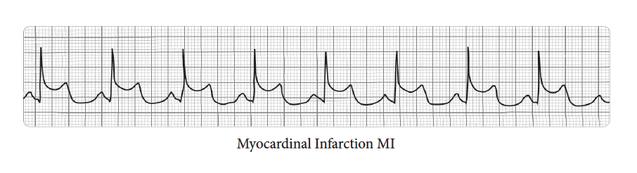 42794640ff3 Adult Acute Myocardial Infarction