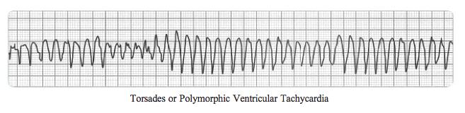 7700545_orig Adult Torsades /Polymorphic Ventricular Tachycardia